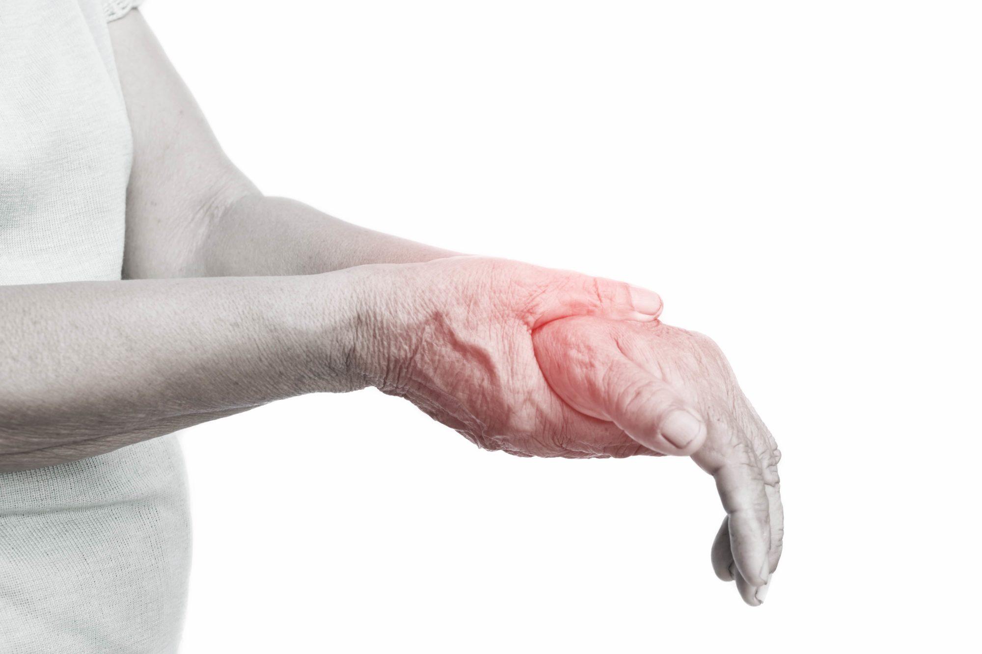 hand pijn en pols pijn laten behandelen door fysiotherapie nijmegen sport medisch centrum papendal