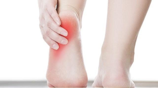 hielspoor-smcp-fysiotherapie nijmegen