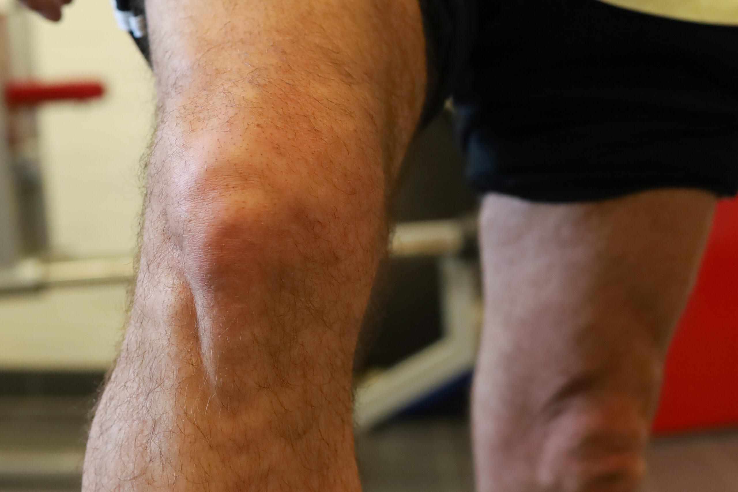 revalideren bij een nieuwe knie in fysiotherapie nijmegen van sport medisch centrum papendal