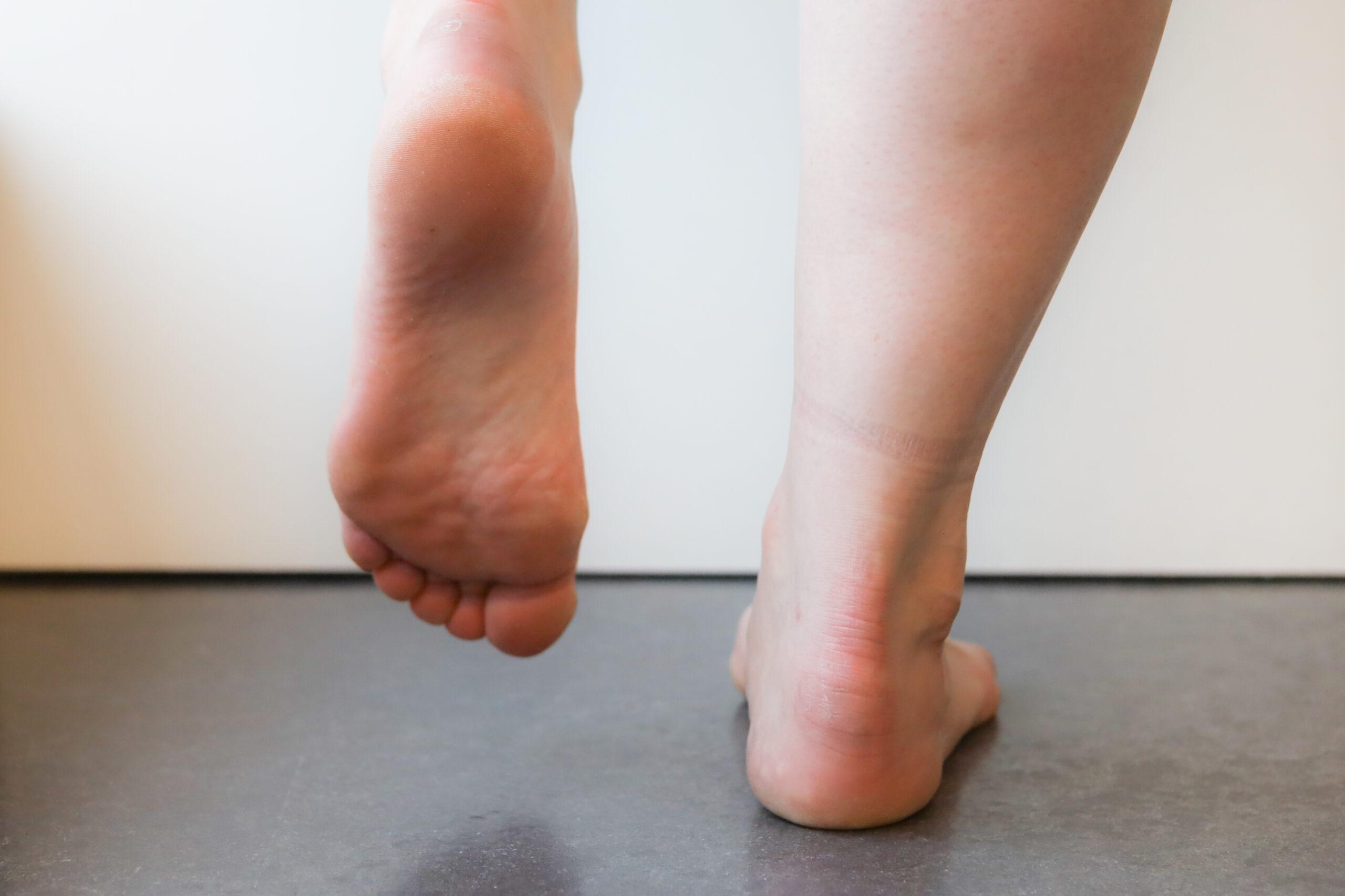 behandeling van achillespees klachten bij fysiotherapie nijmegen van sport medisch centrum papendal