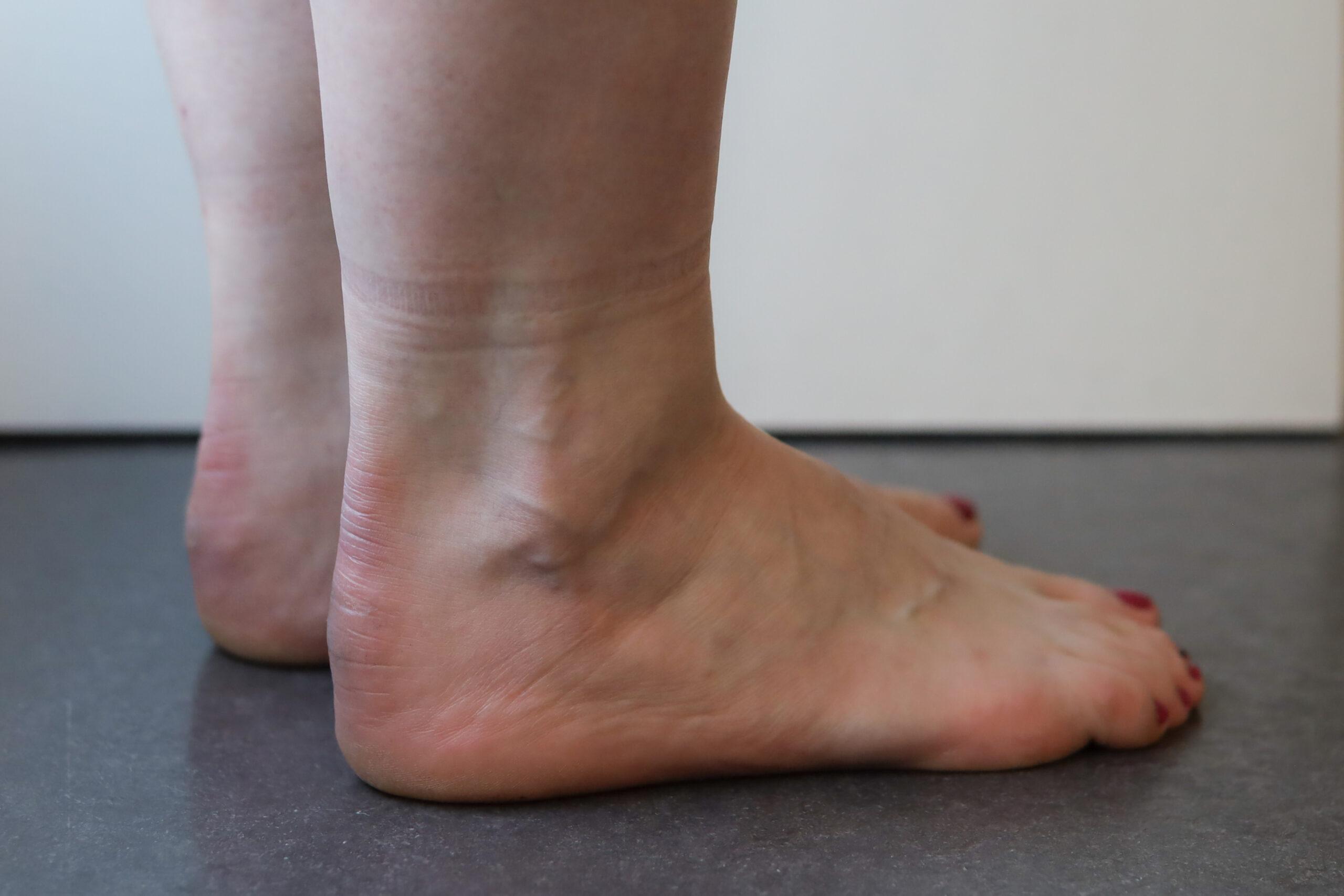 revalidatie na achillespees ruptuur bij fysiotherapie Nijmegen van Sport Medisch Centrum Papendal